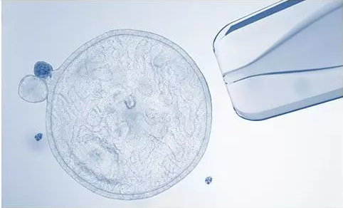 来自干细胞的精准医疗抗衰
