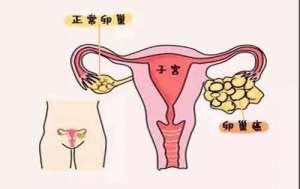 子宫癌用免疫治疗多少钱一次